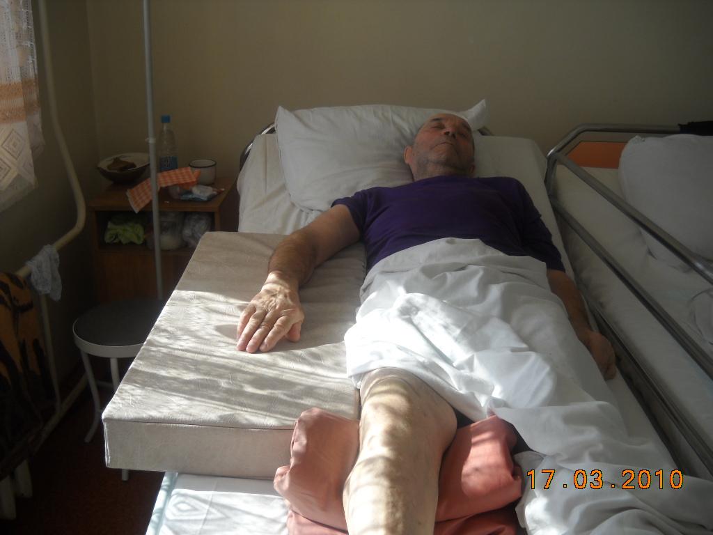 Лежачий больной с переломом шейки бедра в домашних условиях 806
