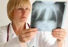 Прокуратурой Советского района проведена проверка исполнения законодательства о предупреждении распространения туберкулеза